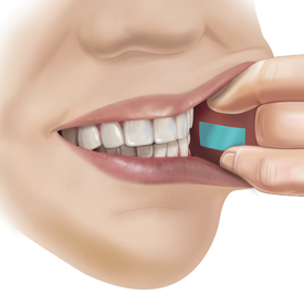 A PharmFilm® medication being applied to the inside of a cheek (buccal delivery)